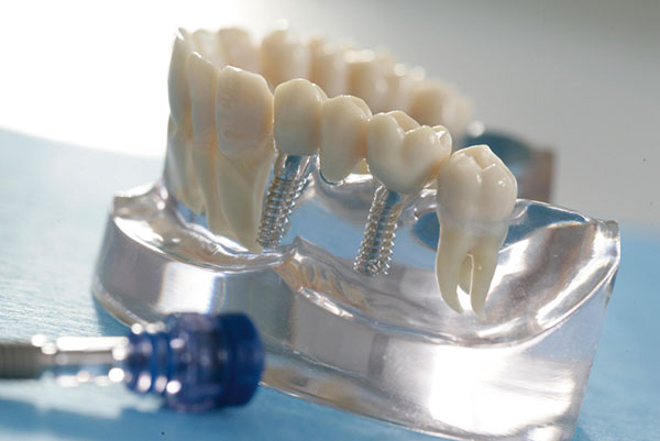 Zahnarztpraxis Rage-Holm   Implantologie